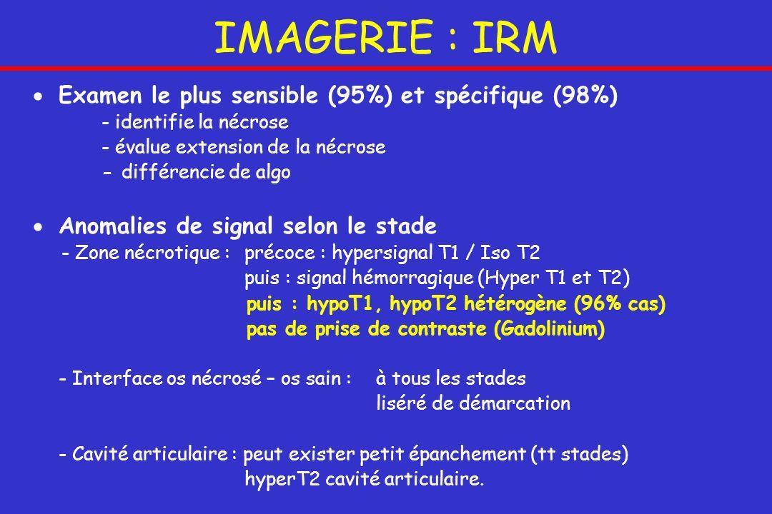 IMAGERIE : IRM Examen le plus sensible (95%) et spécifique (98%) - identifie la nécrose - évalue extension de la nécrose - différencie de algo Anomali