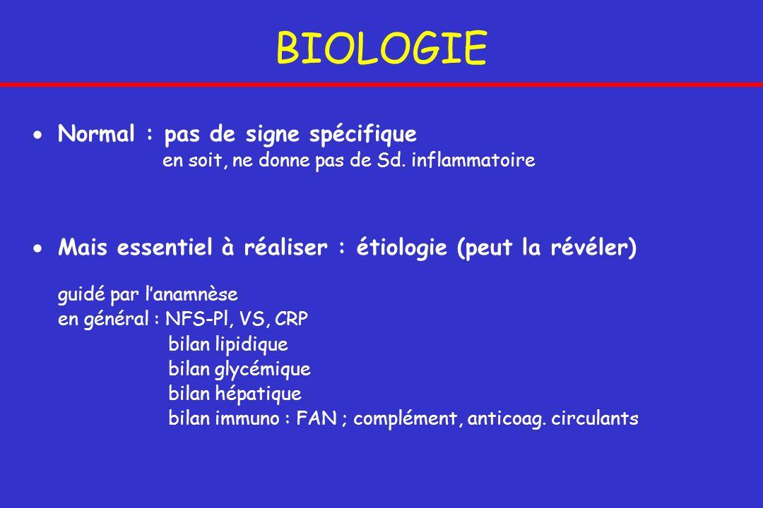 BIOLOGIE Normal : pas de signe spécifique en soit, ne donne pas de Sd. inflammatoire Mais essentiel à réaliser : étiologie (peut la révéler) guidé par