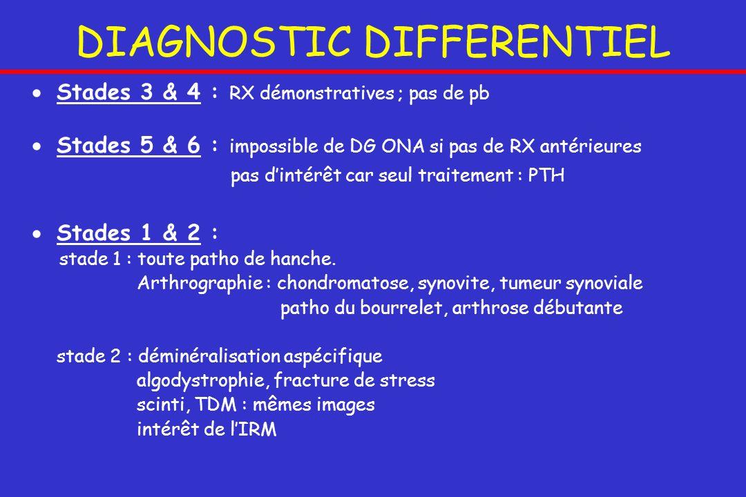DIAGNOSTIC DIFFERENTIEL Stades 3 & 4 : RX démonstratives ; pas de pb Stades 5 & 6 : impossible de DG ONA si pas de RX antérieures pas dintérêt car seu