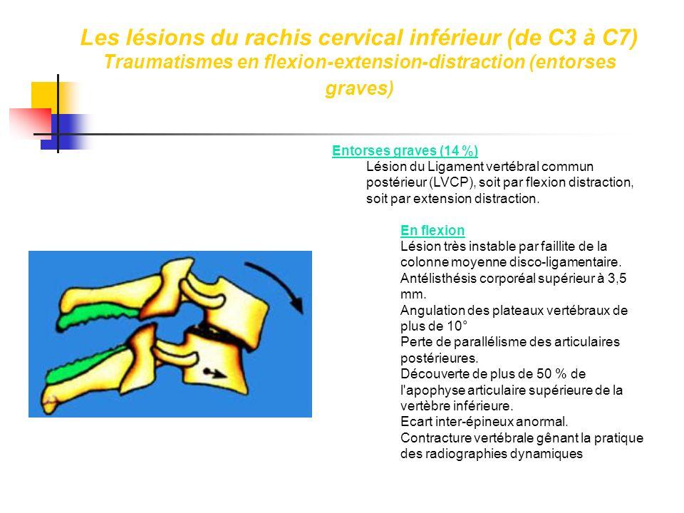 Entorses graves (14 %) Lésion du Ligament vertébral commun postérieur (LVCP), soit par flexion distraction, soit par extension distraction. En flexion