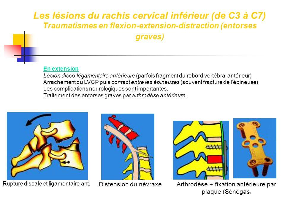 En extension Lésion disco-légamentaire antérieure (parfois fragment du rebord vertébral antérieur) Arrachement du LVCP puis contact entre les épineuse