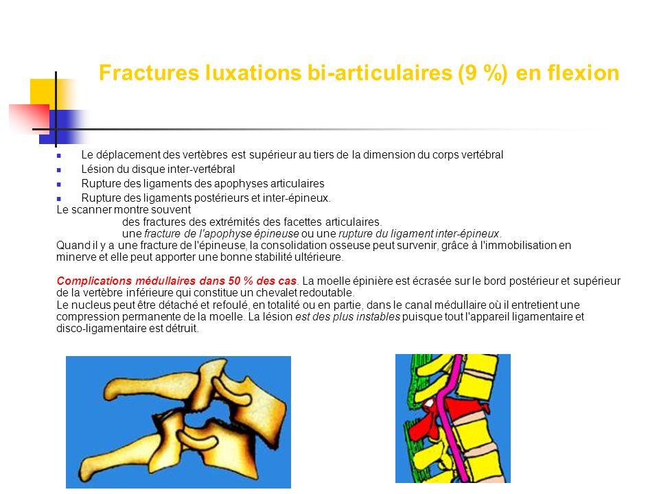 Fractures luxations bi-articulaires (9 %) en flexion Le déplacement des vertèbres est supérieur au tiers de la dimension du corps vertébral Lésion du