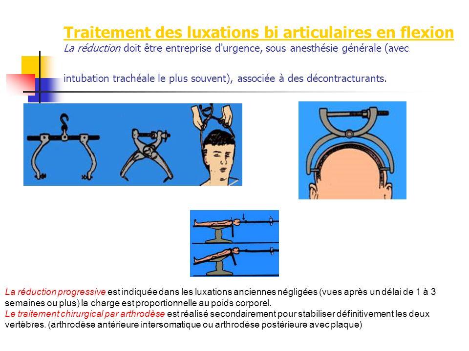 Traitement des luxations bi articulaires en flexion La réduction doit être entreprise d'urgence, sous anesthésie générale (avec intubation trachéale l