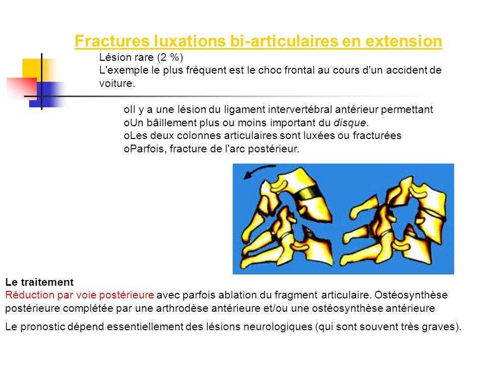 Fractures luxations bi-articulaires en extension Lésion rare (2 %) L'exemple le plus fréquent est le choc frontal au cours d'un accident de voiture. o