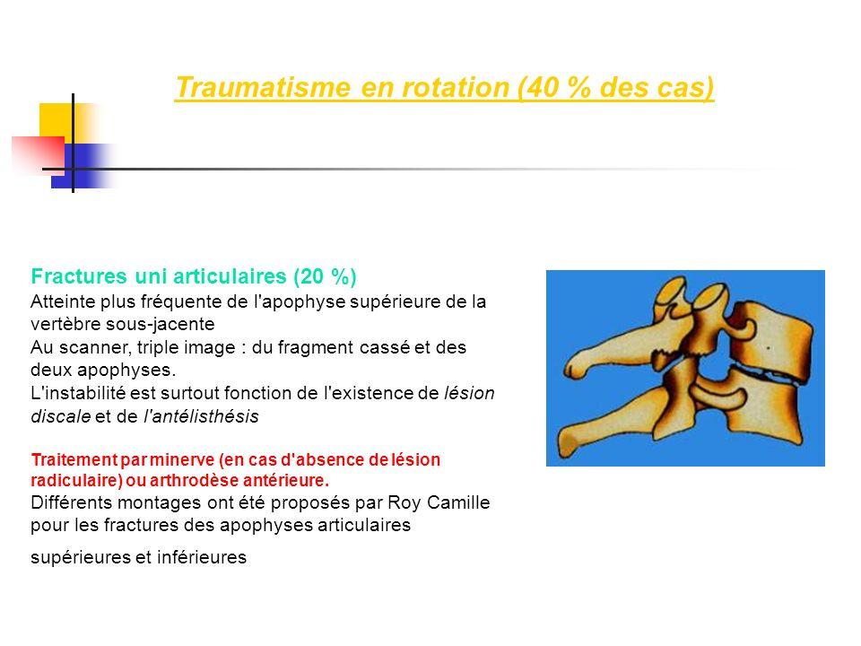 Traumatisme en rotation (40 % des cas) Fractures uni articulaires (20 %) Atteinte plus fréquente de l'apophyse supérieure de la vertèbre sous-jacente