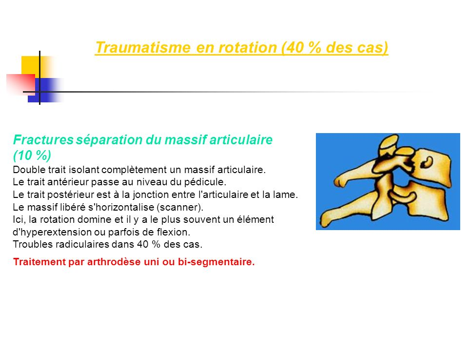 Fractures séparation du massif articulaire (10 %) Double trait isolant complètement un massif articulaire. Le trait antérieur passe au niveau du pédic