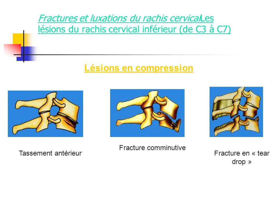 Fractures et luxations du rachis cervicalLes lésions du rachis cervical inférieur (de C3 à C7) Lésions en compression Tassement antérieur Fracture com