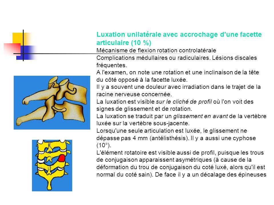 Luxation unilatérale avec accrochage d'une facette articulaire (10 %) Mécanisme de flexion rotation controlatérale Complications médullaires ou radicu