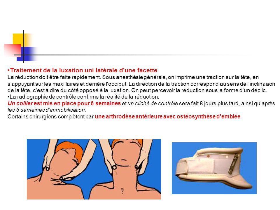 Traitement de la luxation uni latérale d'une facette La réduction doit être faite rapidement. Sous anesthésie générale, on imprime une traction sur la