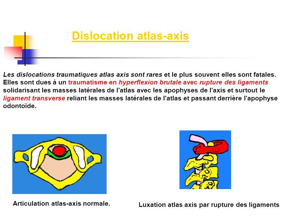 Les dislocations traumatiques atlas axis sont rares et le plus souvent elles sont fatales. Elles sont dues à un traumatisme en hyperflexion brutale av