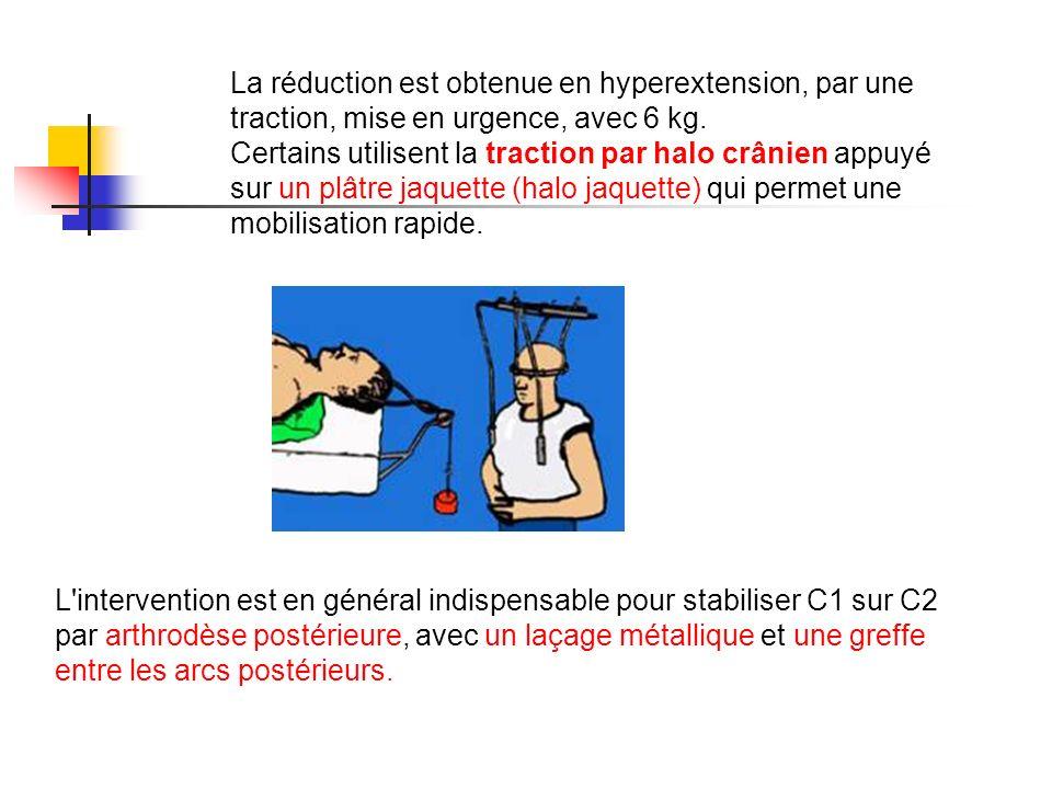 La réduction est obtenue en hyperextension, par une traction, mise en urgence, avec 6 kg. Certains utilisent la traction par halo crânien appuyé sur u