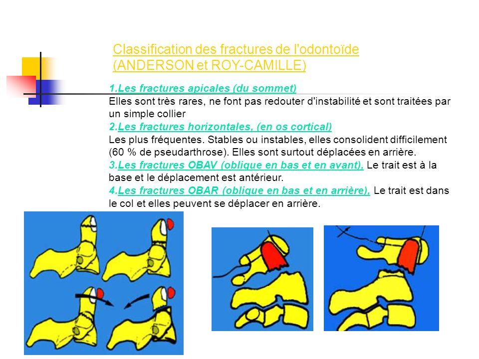 1.Les fractures apicales (du sommet) Elles sont très rares, ne font pas redouter d'instabilité et sont traitées par un simple collier 2.Les fractures