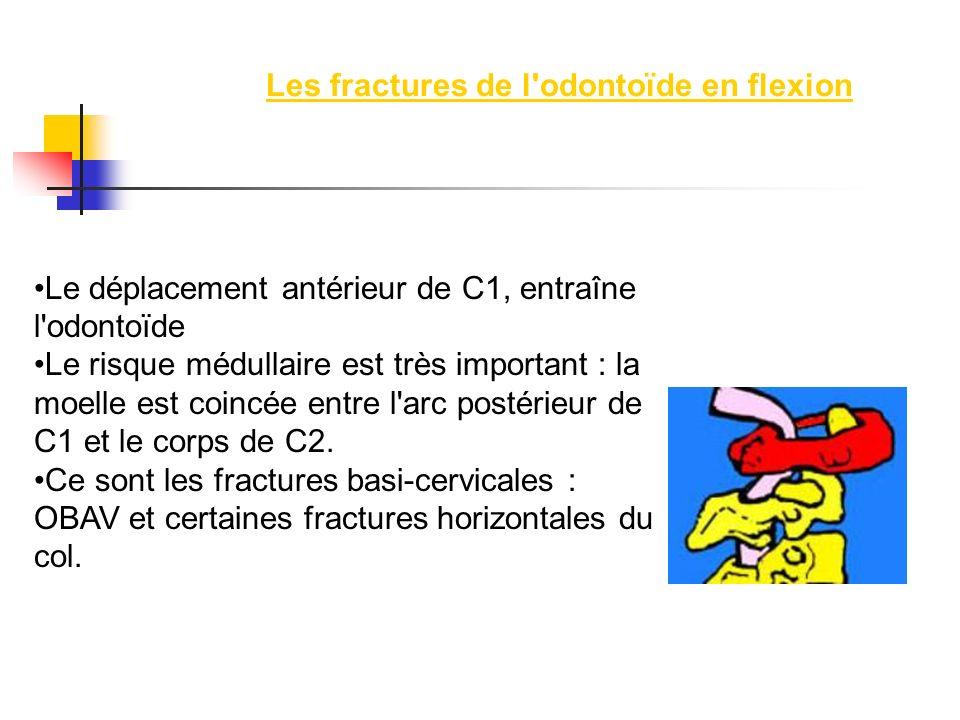 Les fractures de l'odontoïde en flexion Le déplacement antérieur de C1, entraîne l'odontoïde Le risque médullaire est très important : la moelle est c