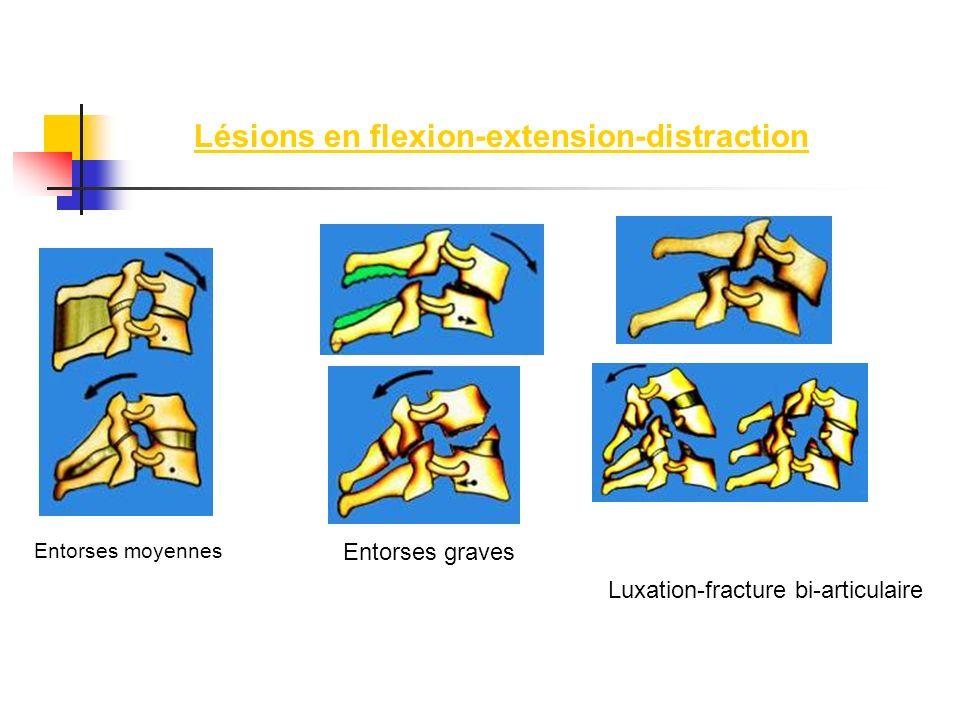 Lésions en flexion-extension-distraction Entorses moyennes Entorses graves Luxation-fracture bi-articulaire
