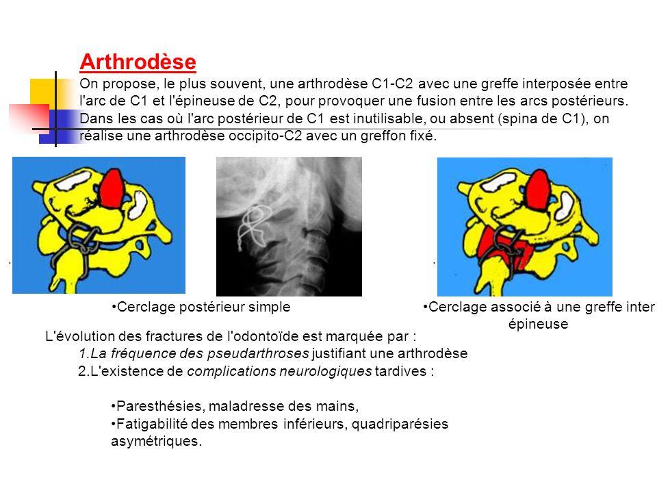 Arthrodèse On propose, le plus souvent, une arthrodèse C1-C2 avec une greffe interposée entre l'arc de C1 et l'épineuse de C2, pour provoquer une fusi