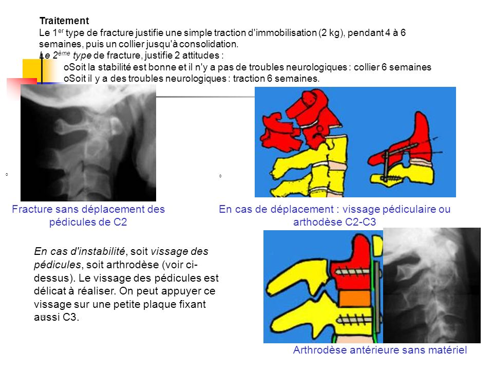 Traitement Le 1 er type de fracture justifie une simple traction d'immobilisation (2 kg), pendant 4 à 6 semaines, puis un collier jusqu'à consolidatio