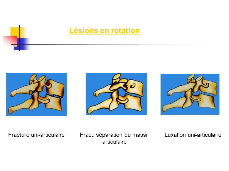 Lésions en rotation Fracture uni-articulaireFract. séparation du massif articulaire Luxation uni-articulaire