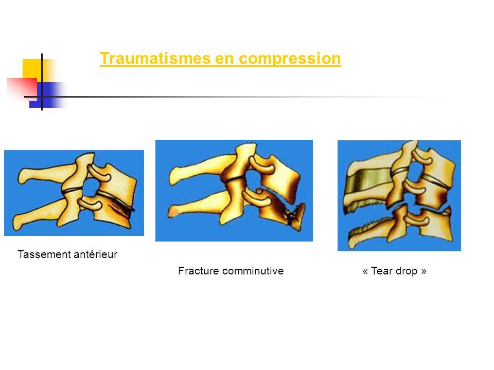 Traumatismes en compression Fracture comminutive « Tear drop » Tassement antérieur