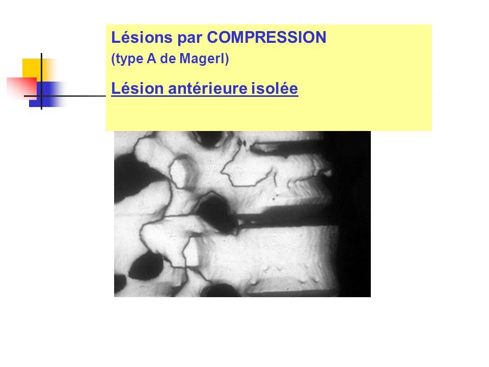 Lésions par COMPRESSION (type A de Magerl) Lésion antérieure isolée