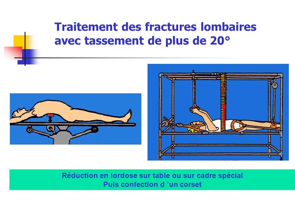 Traitement des fractures lombaires avec tassement de plus de 20° Réduction en lordose sur table ou sur cadre spécial Puis confection d un corset