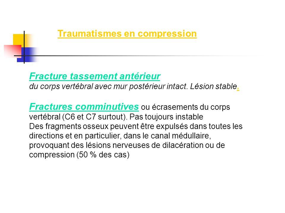 Fracture tassement antérieur du corps vertébral avec mur postérieur intact. Lésion stable. Fractures comminutives ou écrasements du corps vertébral (C