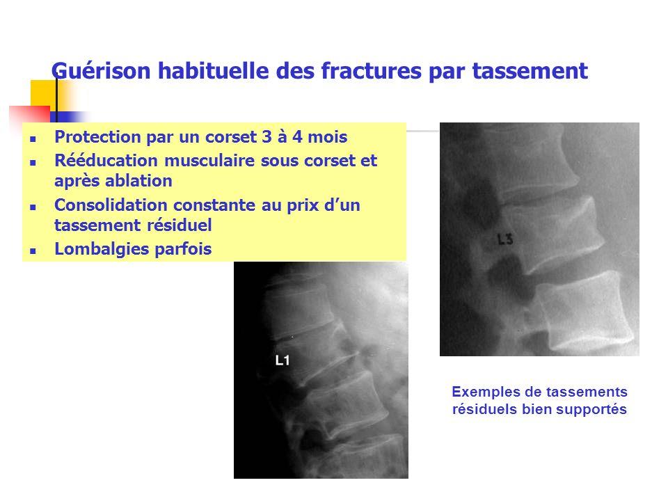 Guérison habituelle des fractures par tassement Protection par un corset 3 à 4 mois Rééducation musculaire sous corset et après ablation Consolidation