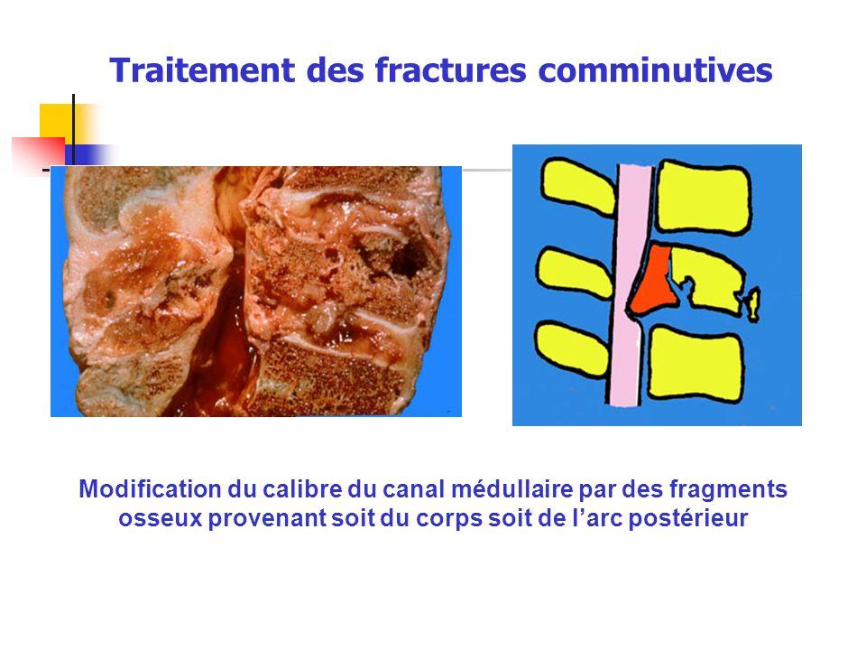 Traitement des fractures comminutives Modification du calibre du canal médullaire par des fragments osseux provenant soit du corps soit de larc postér