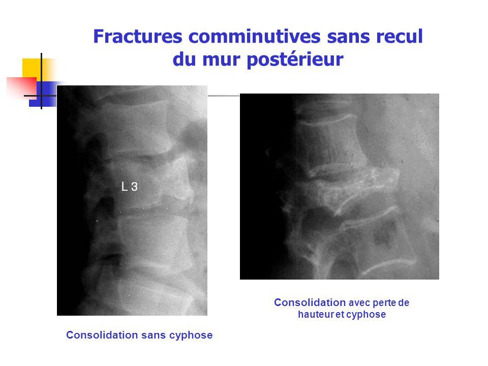 Fractures comminutives sans recul du mur postérieur Consolidation sans cyphose Consolidation avec perte de hauteur et cyphose