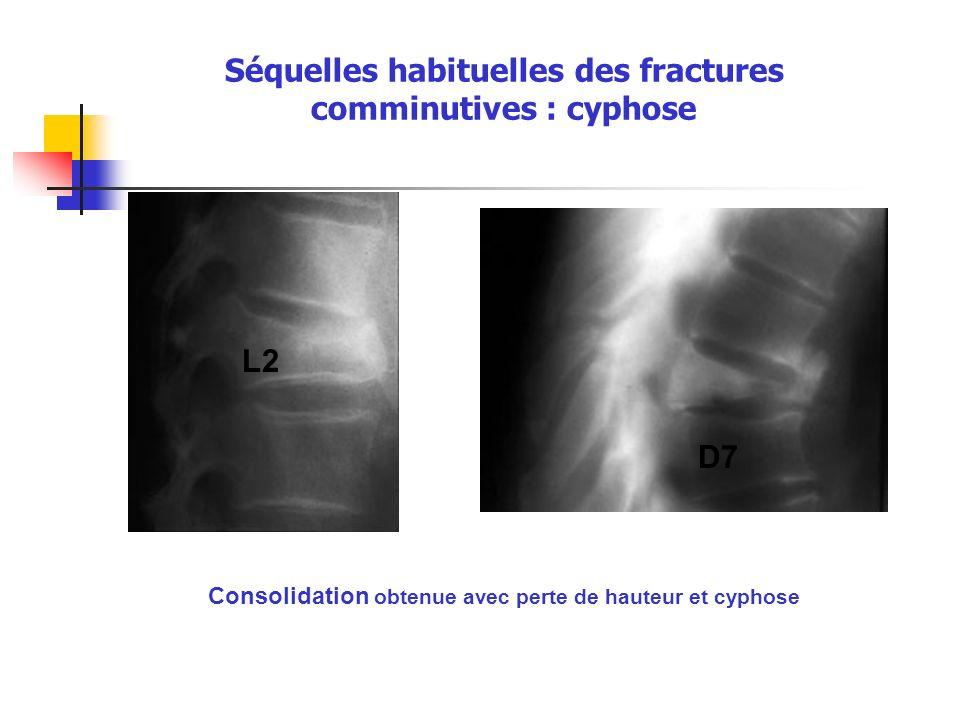 Séquelles habituelles des fractures comminutives : cyphose Consolidation obtenue avec perte de hauteur et cyphose L2 D7