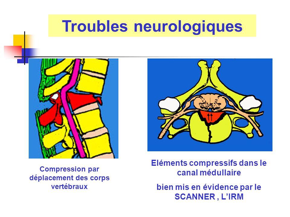 Troubles neurologiques Eléments compressifs dans le canal médullaire bien mis en évidence par le SCANNER, LIRM Compression par déplacement des corps v