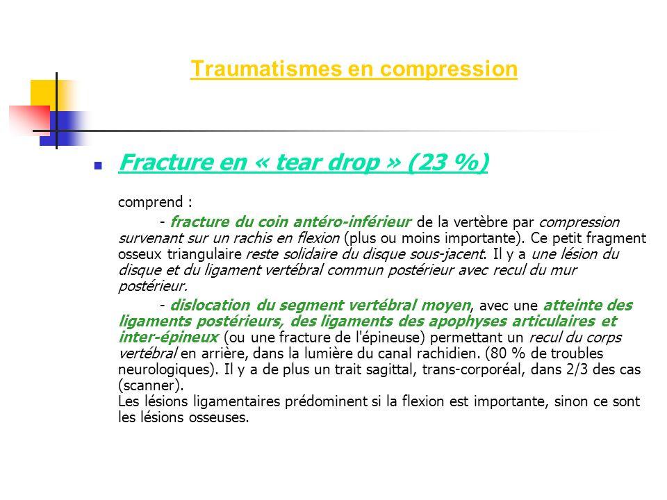 Fracture en « tear drop » (23 %) comprend : - fracture du coin antéro-inférieur de la vertèbre par compression survenant sur un rachis en flexion (plu