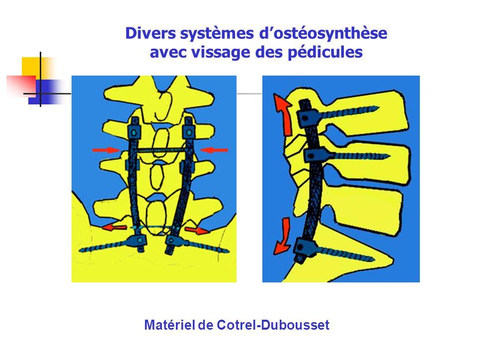 Matériel de Cotrel-Dubousset Divers systèmes dostéosynthèse avec vissage des pédicules