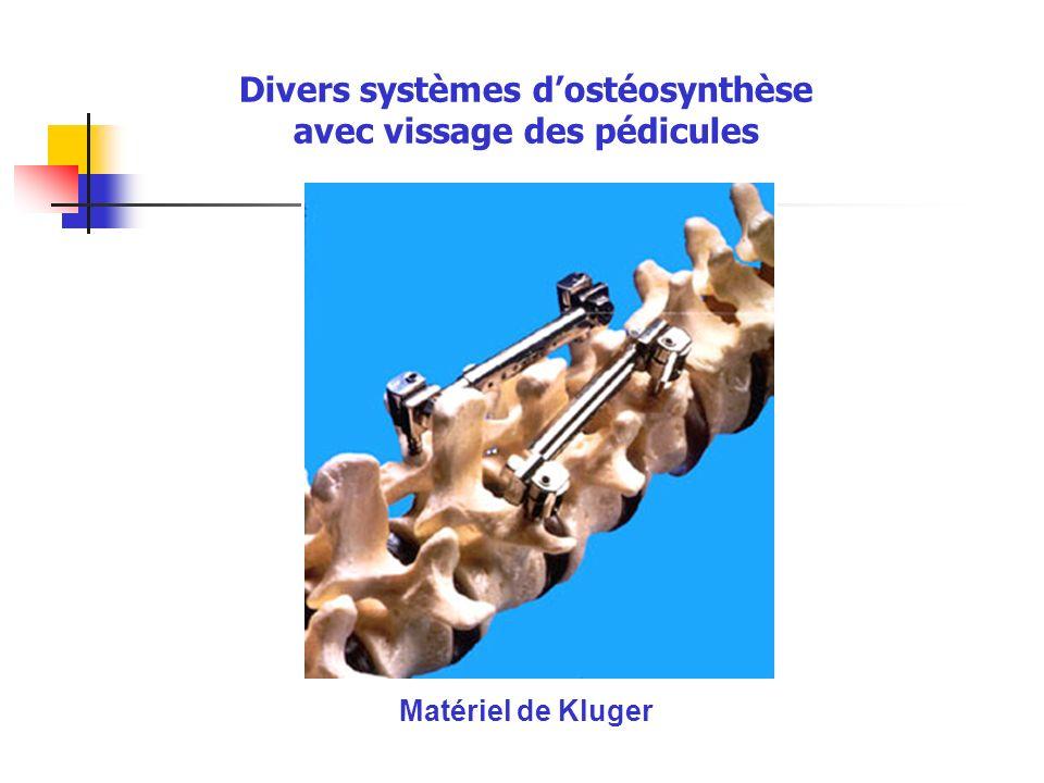 Matériel de Kluger Divers systèmes dostéosynthèse avec vissage des pédicules