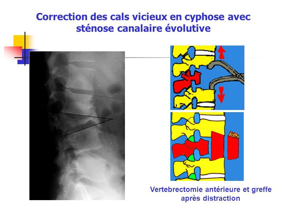 Correction des cals vicieux en cyphose avec sténose canalaire évolutive Vertebrectomie antérieure et greffe après distraction