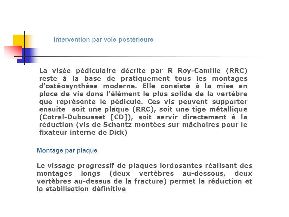 Intervention par voie postérieure La visée pédiculaire décrite par R Roy-Camille (RRC) reste à la base de pratiquement tous les montages d'ostéosynthè