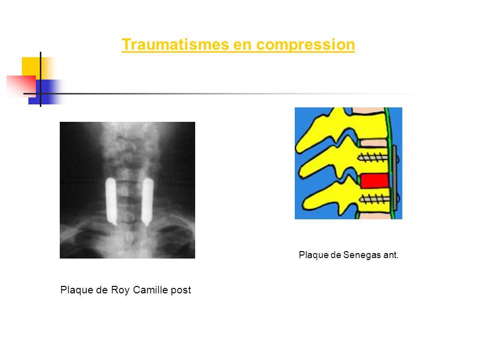 Plaque de Roy Camille post Plaque de Senegas ant. Traumatismes en compression