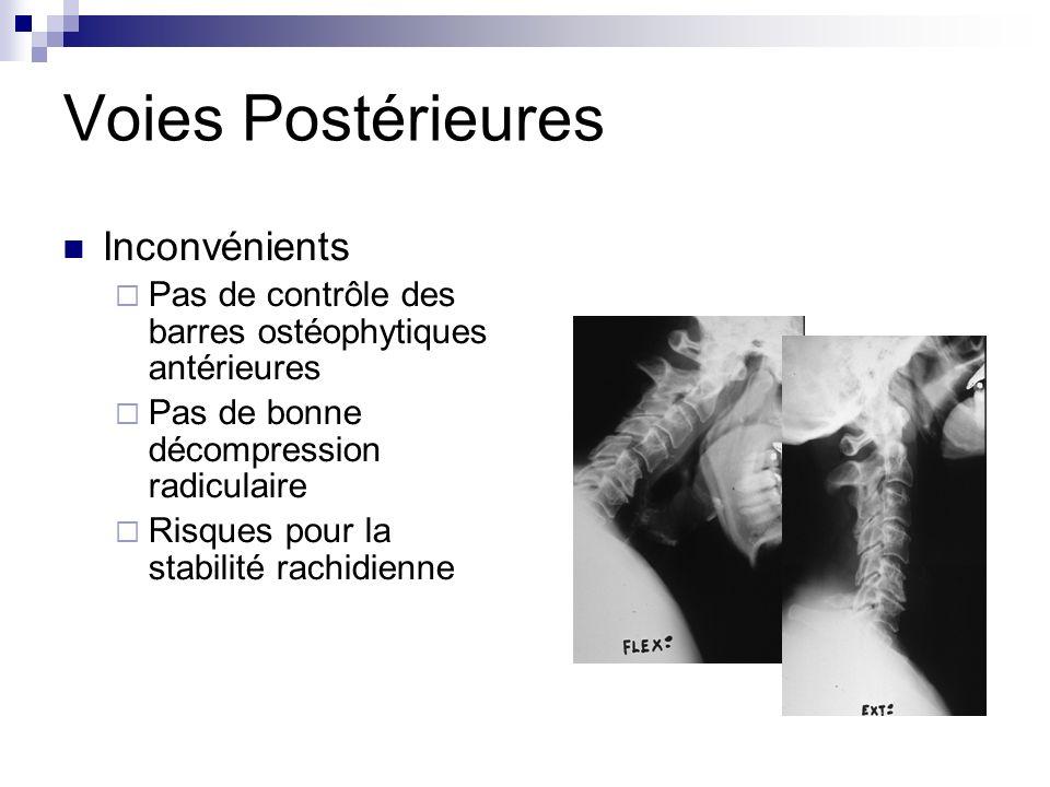 Voies Postérieures Inconvénients Pas de contrôle des barres ostéophytiques antérieures Pas de bonne décompression radiculaire Risques pour la stabilité rachidienne