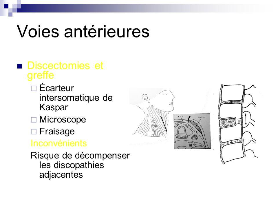 Voies antérieures Discectomies et greffe Écarteur intersomatique de Kaspar Microscope Fraisage Inconvénients Risque de décompenser les discopathies adjacentes