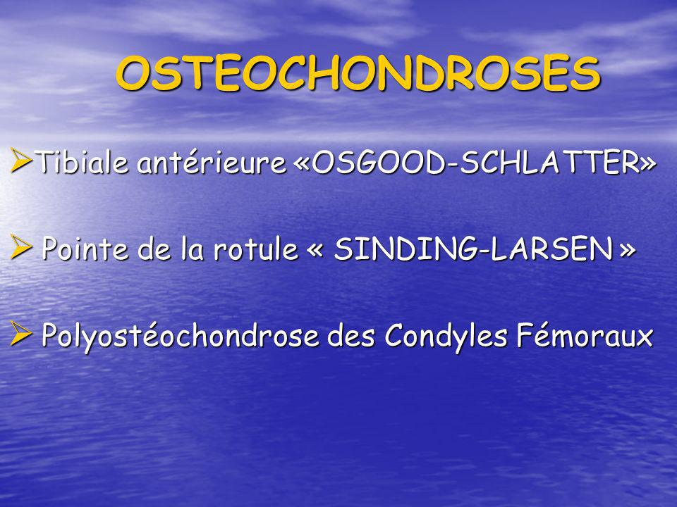 OSTEOCHONDROSES OSTEOCHONDROSES Tibiale antérieure «OSGOOD-SCHLATTER» Tibiale antérieure «OSGOOD-SCHLATTER» Pointe de la rotule « SINDING-LARSEN » Poi
