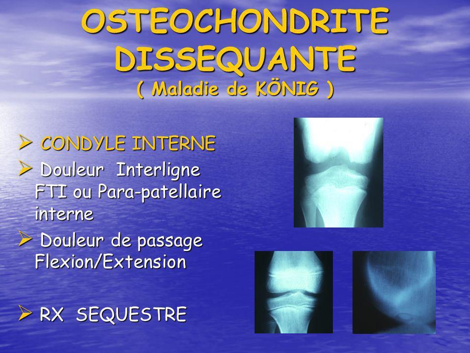OSTEOCHONDRITE DISSEQUANTE ( Maladie de KÖNIG ) CONDYLE INTERNE CONDYLE INTERNE Douleur Interligne FTI ou Para-patellaire interne Douleur Interligne F