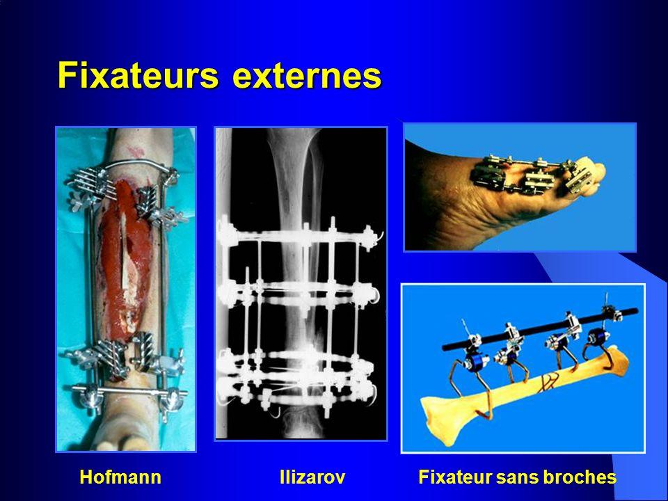 Fixateurs externes HofmannIlizarov Fixateur sans broches