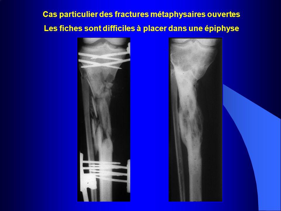 Cas particulier des fractures métaphysaires ouvertes Les fiches sont difficiles à placer dans une épiphyse