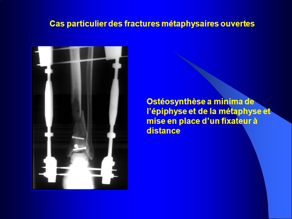 Cas particulier des fractures métaphysaires ouvertes Ostéosynthèse a minima de lépiphyse et de la métaphyse et mise en place dun fixateur à distance