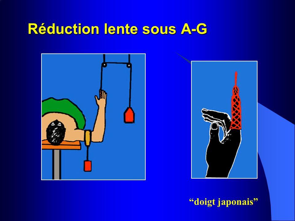 Réduction lente sous A-G doigt japonais