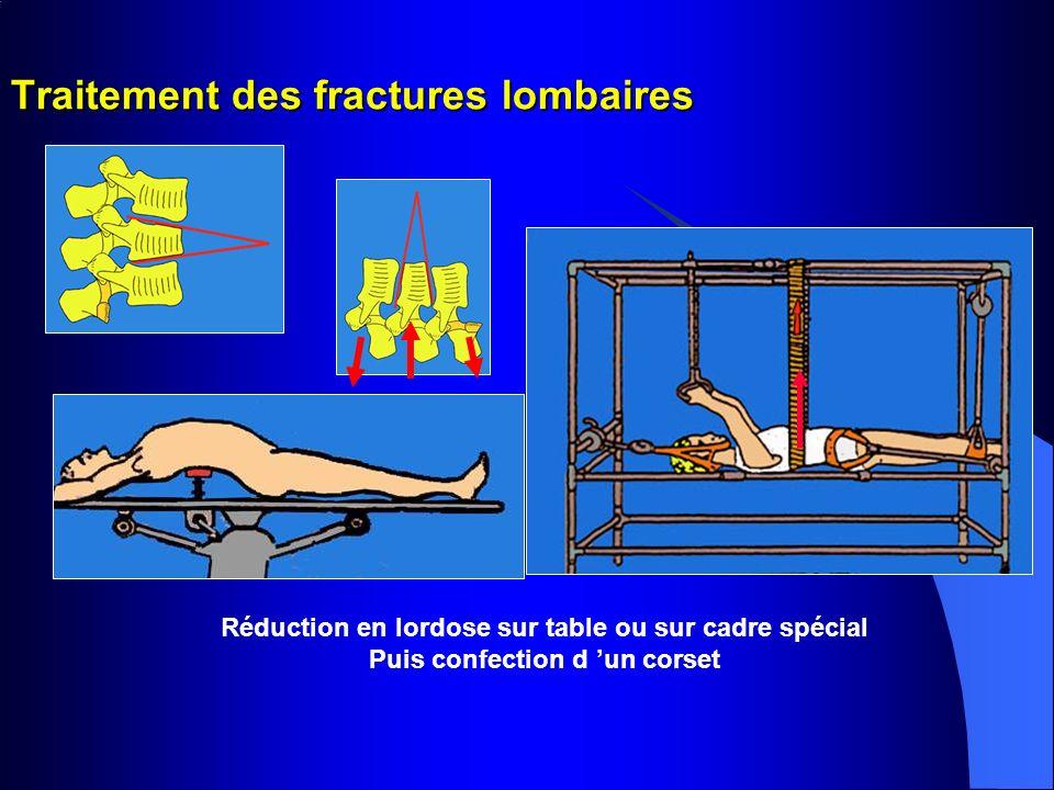 Traitement des fractures lombaires Réduction en lordose sur table ou sur cadre spécial Puis confection d un corset