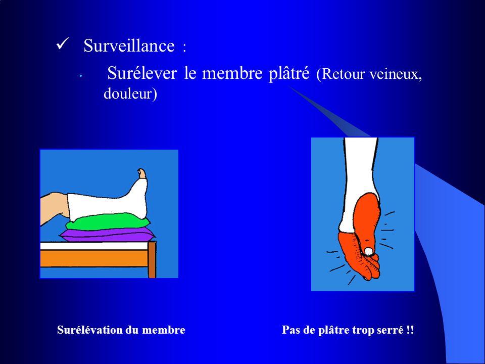 Surveillance : Surélever le membre plâtré (Retour veineux, douleur) Surélévation du membre Pas de plâtre trop serré !!