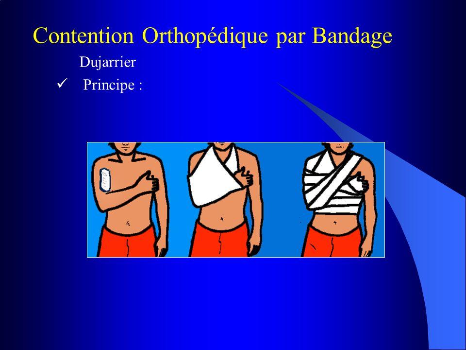 Contention Orthopédique par Bandage Dujarrier Principe :