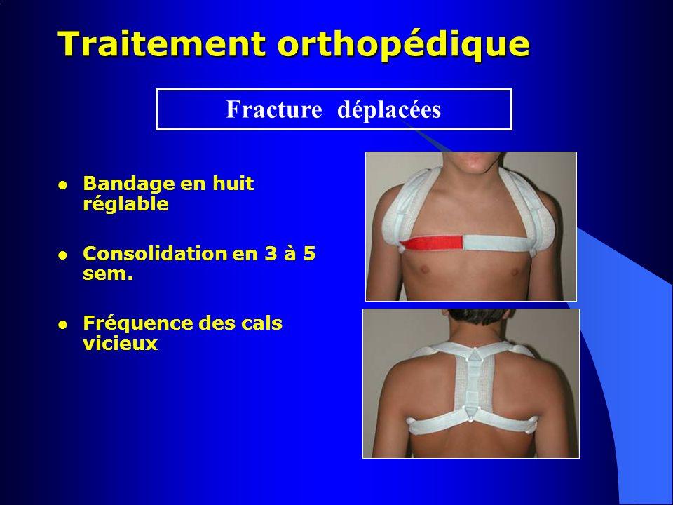 Traitement orthopédique Bandage en huit réglable Consolidation en 3 à 5 sem. Fréquence des cals vicieux Fracture déplacées