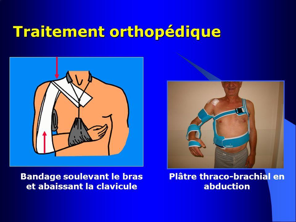 Traitement orthopédique Bandage soulevant le bras et abaissant la clavicule Plâtre thraco-brachial en abduction