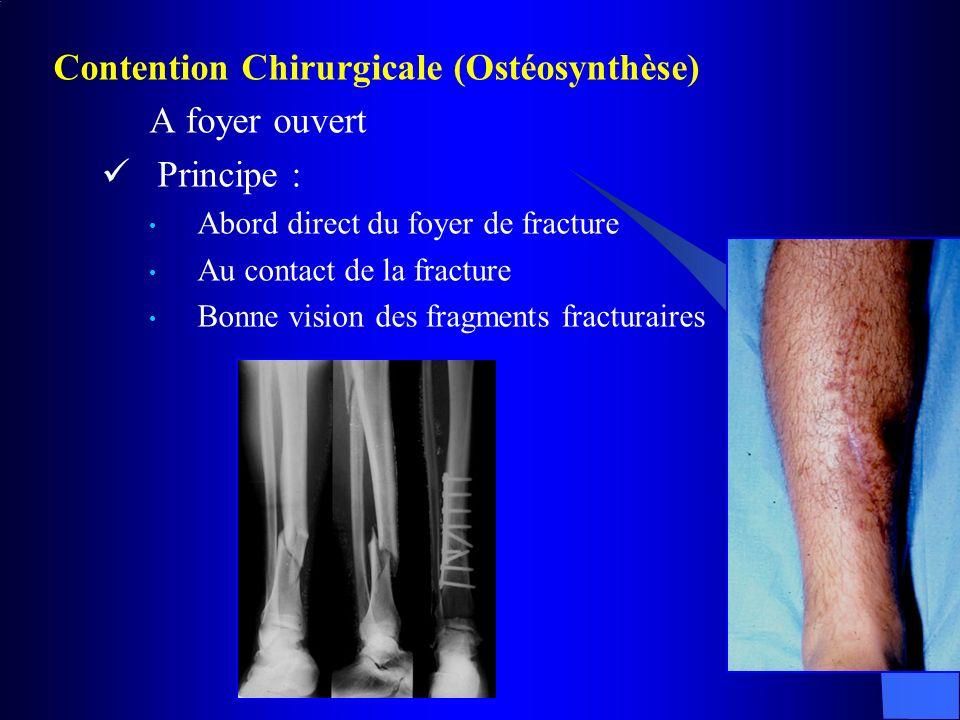 Contention Chirurgicale (Ostéosynthèse) A foyer ouvert Principe : Abord direct du foyer de fracture Au contact de la fracture Bonne vision des fragmen